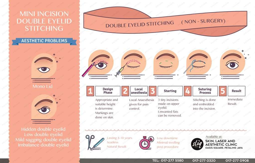 Mini Incision Double Eyelid Stitching in Malaysia Without Surgery