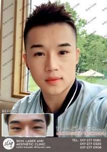 men before and after double eyelid suturing