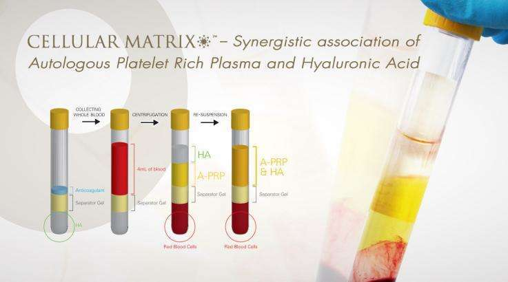 Regenlab cellular matrix platelet rich plasma