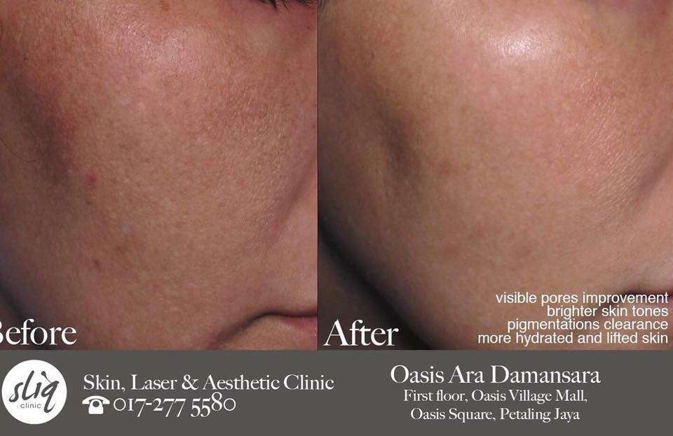 before and after for prp treatment in Kuala Lumpur and Petaling Jaya